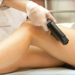 laser hair removal in Dwarka, Delhi
