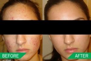 Acne Treatment in Dwarka